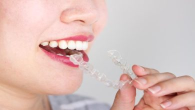 Photo of How is Orthodontic Treatment good in Los Gatos?